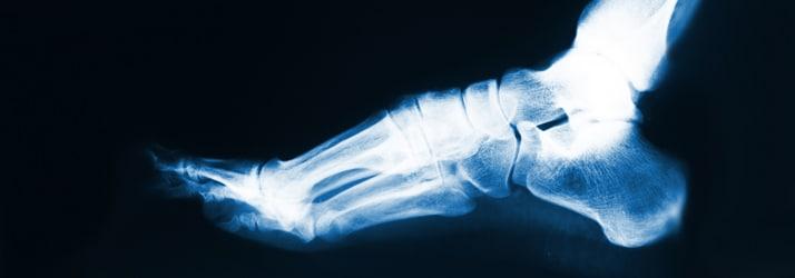 Chiropractic Hernando MS X-Ray